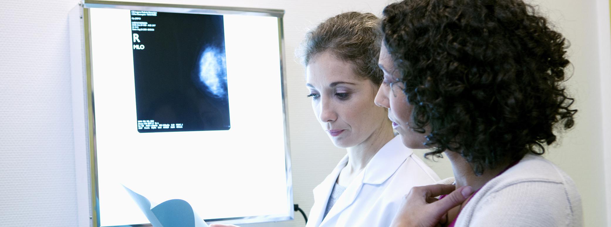 Angelica Mammography Forum